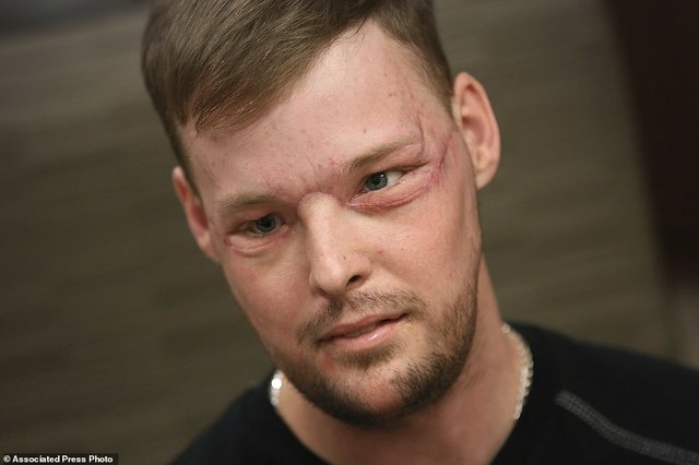 78181-4233744-Staggering_transformation_Face_transplant_recipient_Andy_Sandnes-a-4_1487336301711.jpg