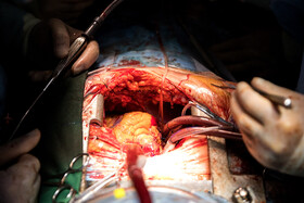 The heart of a 35-year-old woman is transplanted into a 12-year-old girl, Tehran, Iran, September 28, 2019. The heart of a 35-year-old woman, who suffered from brain death, was transferred from Tabriz to Tehran for heart transplanting.